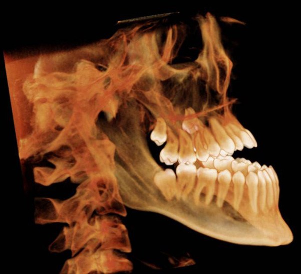 impacted teeth 3d