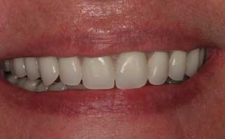 after pic of replacing teeth